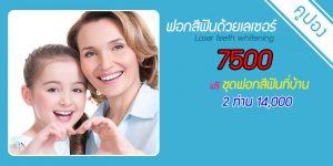 laser-teeth-whitening-discount